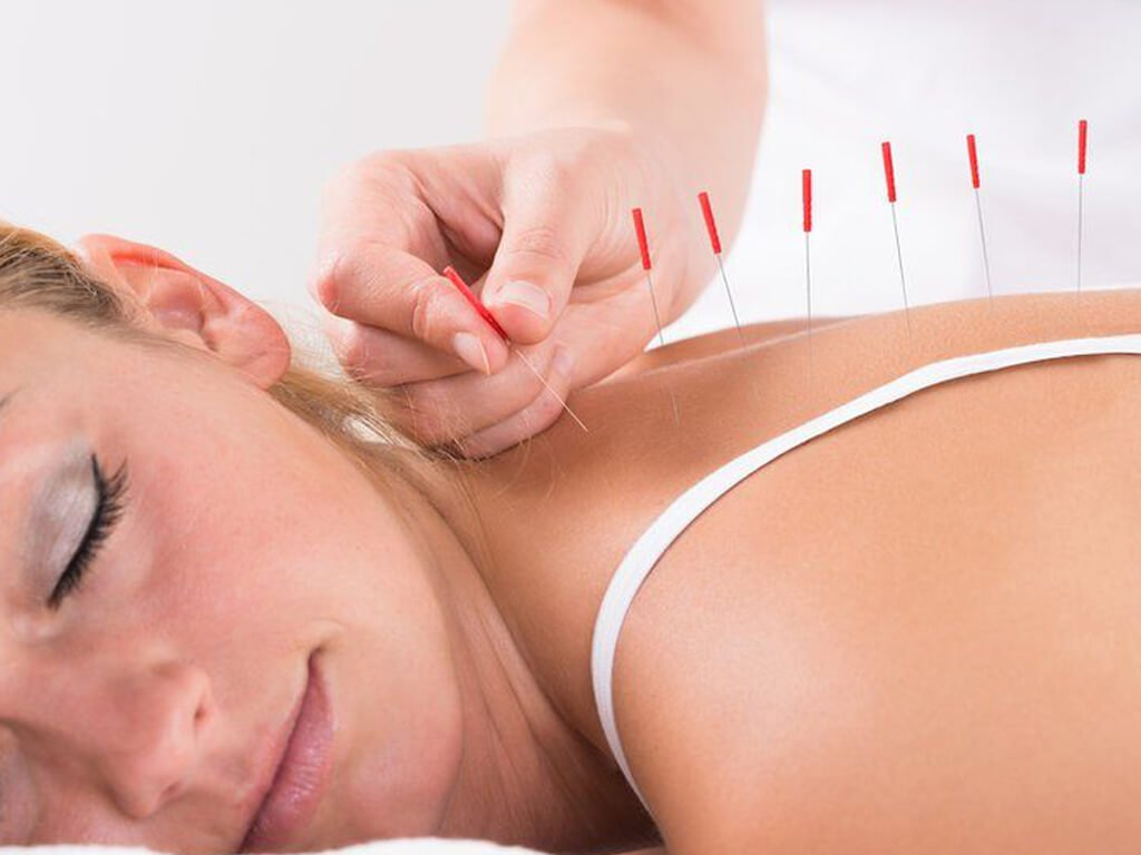 Be Health Acupuncture_img1